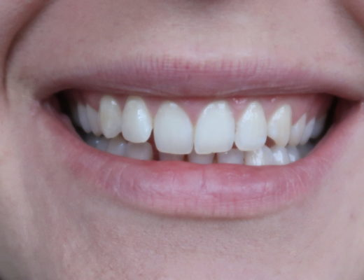 clear braces invisible aligners
